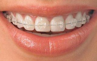 Ortodoncia-adultos