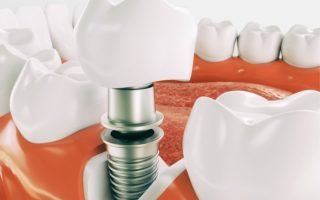 Implantes dentalesok