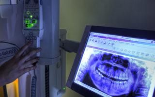 radiología-dental